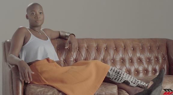 Mama Cax, blogger senza una gamba che sfida il mondo del fashion