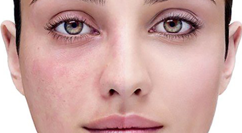 Acne Rosacea: cause, sintomi e rimedi naturali