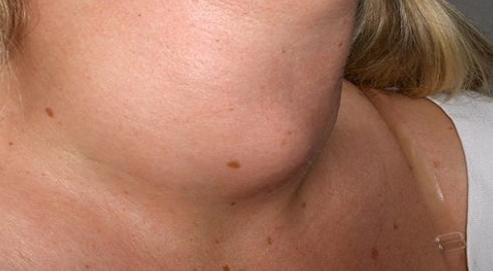 Latte di soia fa male alla tiroide e causa carenza di vitamina D