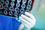 Tumori: trovato il meccanismo per bloccare le metastasi al cervello