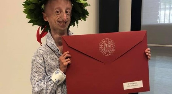 Sammy si laurea: 110 e lode con una tesi sulla sua malattia
