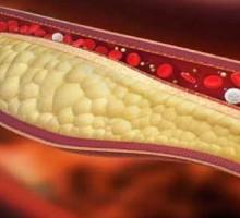 Colesterolo? Gli italiani conoscono i rischi, ma si controllano poco