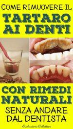 Rimuovere il tartaro dai denti: 5 rimedi naturali