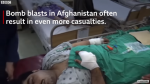 Afghanistan conflict: The young face of a brutal war – BBC News